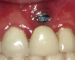 North West Dental Implant Repairs